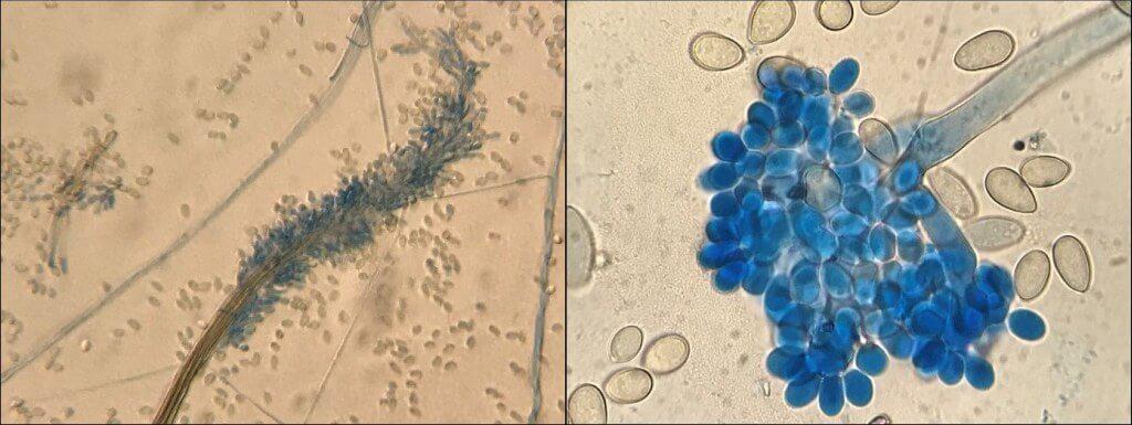 Lichtmikroskopische Untersuchung von Schimmelpilzen. Links Doratomyces sp. und rechts Botrytis sp.